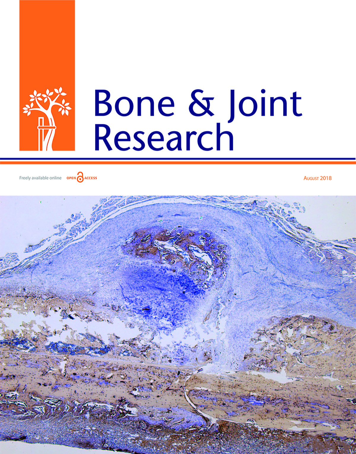 The biofilm eradication activity of acetic acid in the management of periprosthetic joint infection